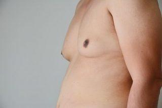 Infertility Symptoms - Gynecomastia