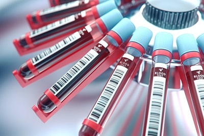 The Essential Guide to HGH Levels Tests in Adults