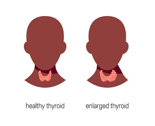 Health Conditions Associated With Thyroid Dysfunction