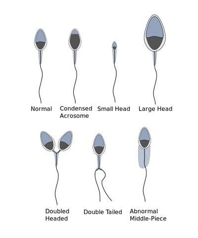 Sperm shapes