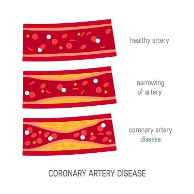 healthy artery and coronary artery desease