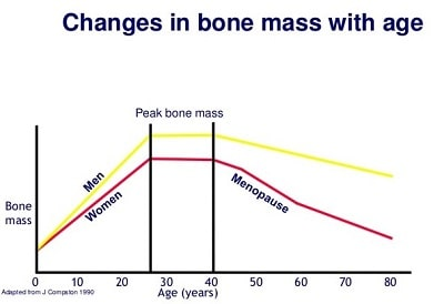 The Negative Health Effects of Testosterone Deficiency in Men - changes in bone mass with age